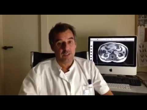 Puntadas en las articulaciones en la osteoartritis