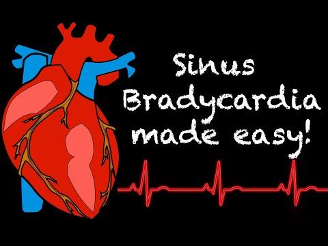 Magas vérnyomásban szenvedő kardiológusnál
