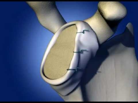 Lezione di ginnastica in osteocondrosi della colonna cervicale