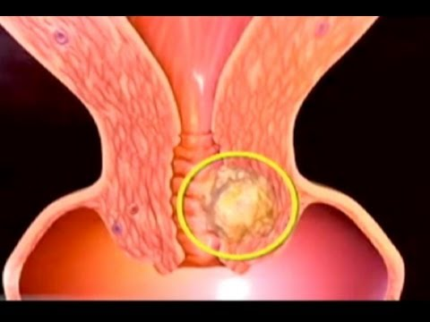 Hpv cancer rectal