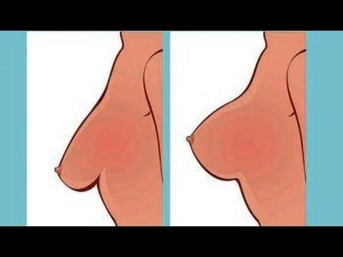 Les points et les augmentations de la poitrine