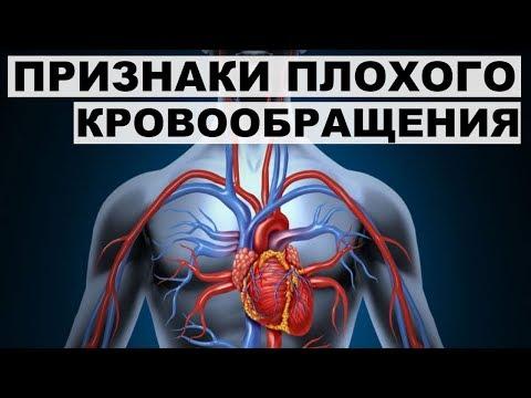 ПРИЗНАКИ ПЛОХОГО КРОВООБРАЩЕНИЯ.Как улучшить кровообращение организма.