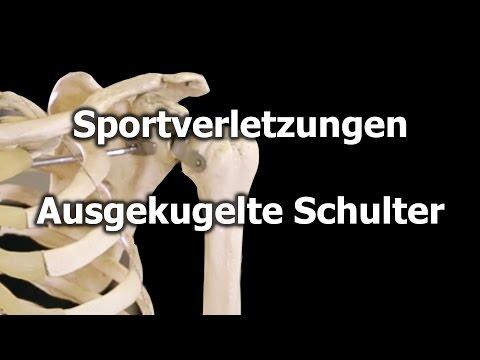 Schmerzen im unteren Rücken Ovarialzyste
