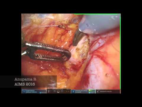 Sentinel Node Mapping - Endometrial cancer- Robotic Platform
