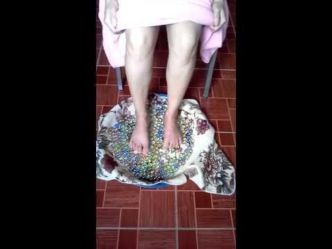 วิธีการรักษา valgus เท้าแบน
