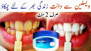 Vaseline For Teeth Whitening - How To Whiten Teeth With Vaseline In 2 Minutes - Permanent Teeth Whi
