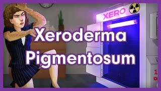 Download Xeroderma Pigmentosum Mnemonic for USMLE