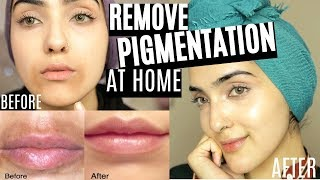 How To REMOVE Pigmentation/ Dark Spots AROUND MOUTH Fast (Natural AT HOME DIYs) ~Immy