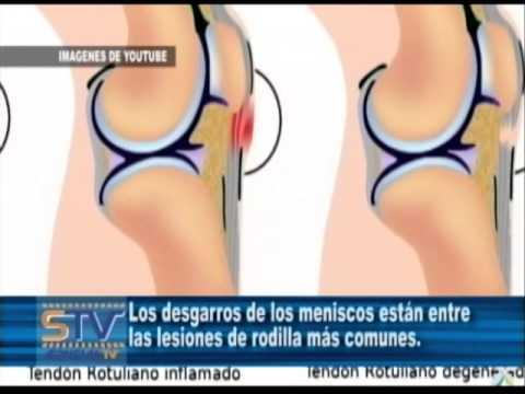 Lado dolor por encima de las causas de la cintura