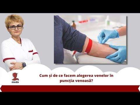 Prevenirea complicațiilor în varicoză