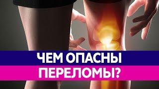 ЧЕМ ОПАСЕН ПЕРЕЛОМ КОСТЕЙ? Лечение переломов и их последствия!