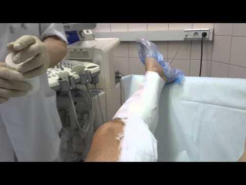 La phlébite les pieds le traitement