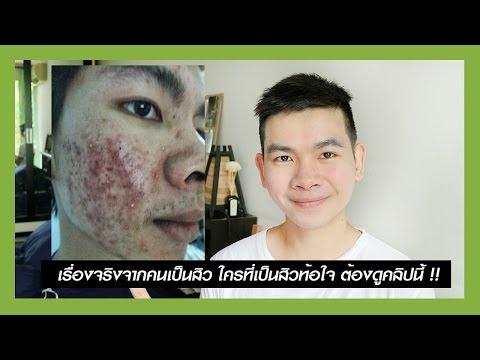 Tsinokap คิดเห็นโรคสะเก็ดเงินโรคสะเก็ดเงินครีม