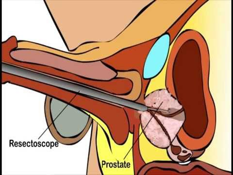 Treatment of prostatitis in Obninsk reviews