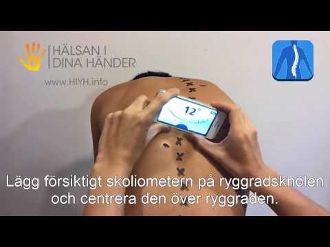 Behandlung von Bändern im Nacken