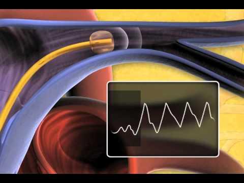 Vorrichtung für die Normalisierung des Blutdrucks