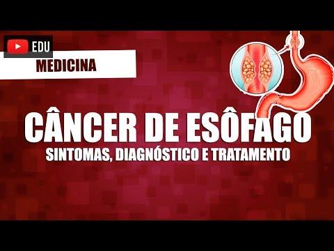 Cancerul de ficat cauze