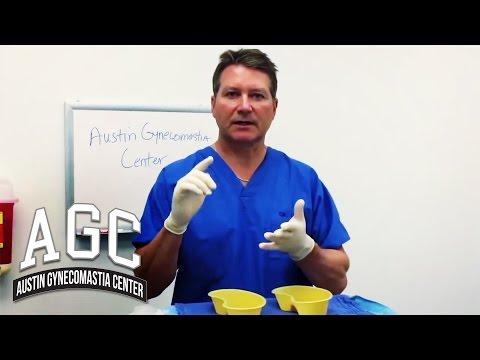 Educational Video: Can Liposuction Alone Remove Gynecomastia?