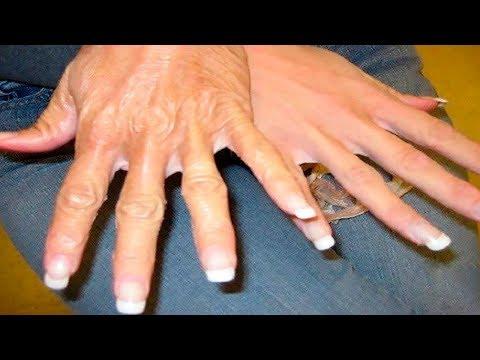 Das Medikament gegen gribka der Finger der Beine