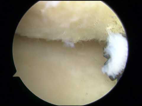 Intervertebrale ernia cervicale Psicosomatica