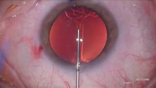 Video: Dr. Vance Thompson: ZEPTO®  with Multifocal