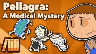 Pellagra - A Medical Mystery - Extra History
