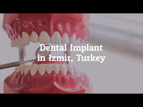 Get-the-Best-Dental-Implant-Izmir-Turkey
