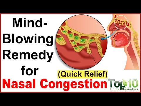Video Instant Relief from Nasal Congestion - Home Remedies