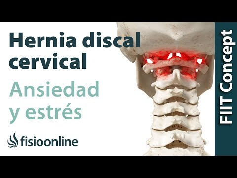 Si es posible curar la osteocondrosis de un departamento de cuello uterino de ejercicio