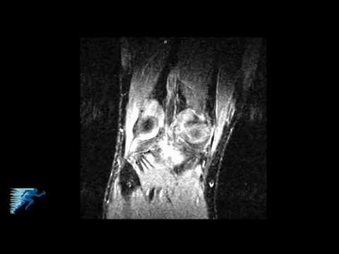 How to Read an MRI of a PCL Tear