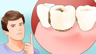 How to Determine if You Need Braces