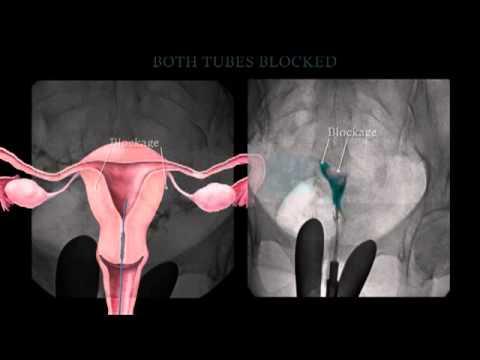 Fallopian Tube Recanalization and Selective Salpingography