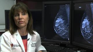 3D Mammography Finds Breast Cancer