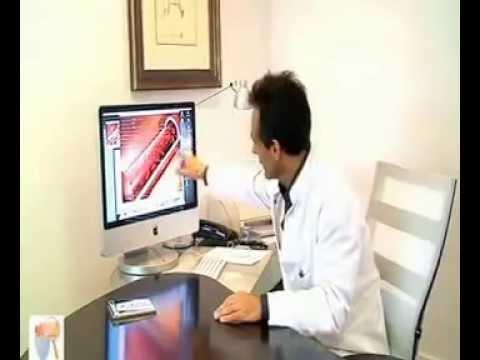 Comment correctement mettre les bas de la varicosité