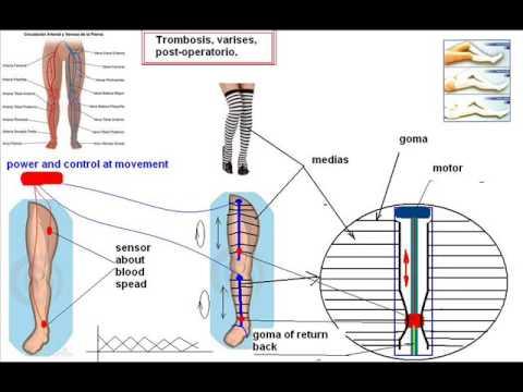 การรักษาวิธีพื้นบ้าน thrombophlebitis
