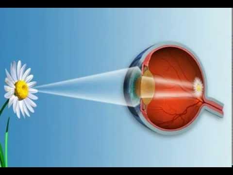 Hogyan kezelik a látás asztigmatizmusát