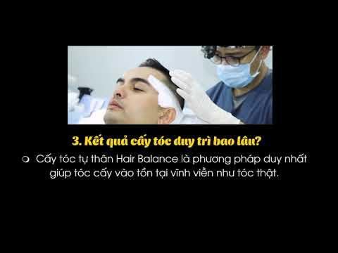 5 Câu Hỏi Cấy Tóc Tự Thân Hair Balance