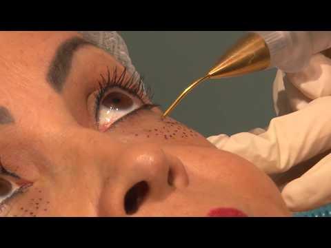 Terapie fotodinamică în oftalmologie