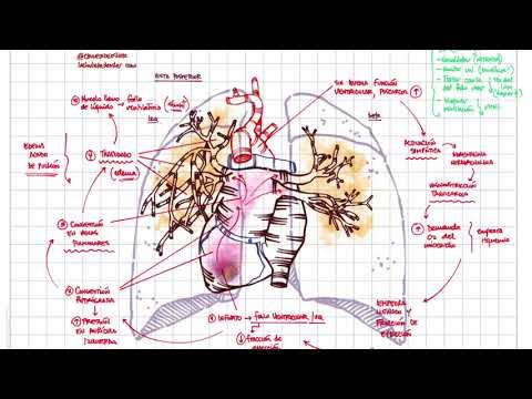 Cataplasma de vinagre de sidra de manzana en la hipertensión