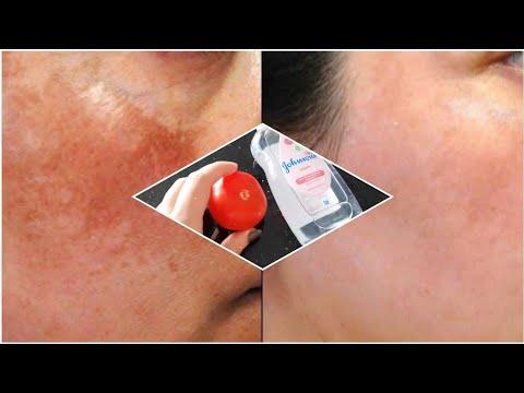 Pikkelysömör bőralak kezelés