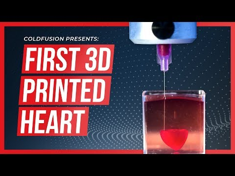 The World's First 3D Printed Heart