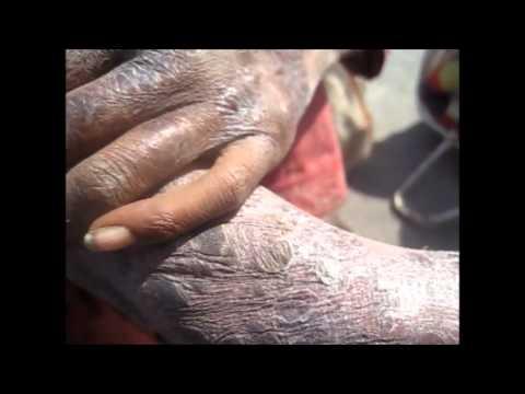 Atopitchesky la dermatite chez les nourrissons comme traiter