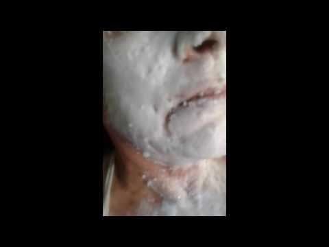 Unguento di un teymurov a psoriasi
