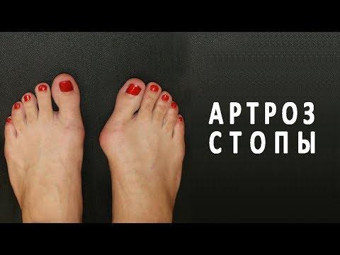 Artroza articulațiilor medicației piciorului
