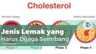 Kolesterol, Jenis Lemak Ditemukan pada Semua Sel Tubuh.