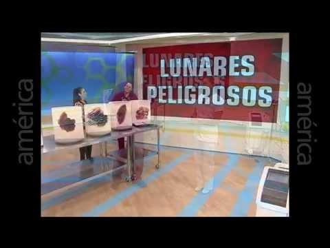 Lunares malignos: Prevenir el cancer por un lunar maligno o melanoma – entrevista en Dr. TV