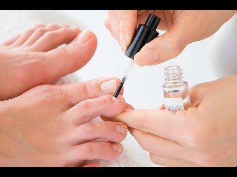 Die Behandlung brüchig den Nagel