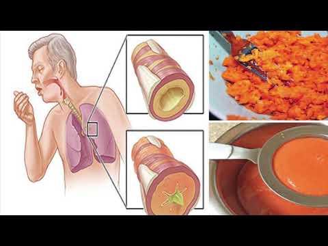 Un set de exerciții pentru durerea articulațiilor șoldului