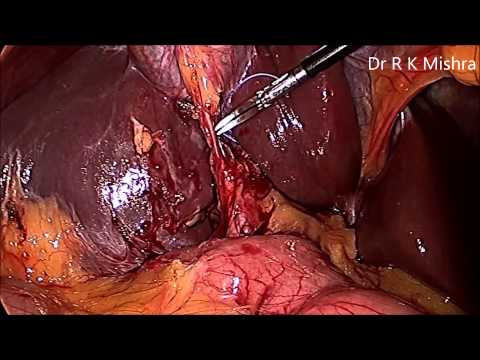 Video Gallbladder Stone Surgery