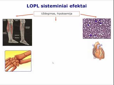 Ar sinusitas veikia kraujo spaudimą